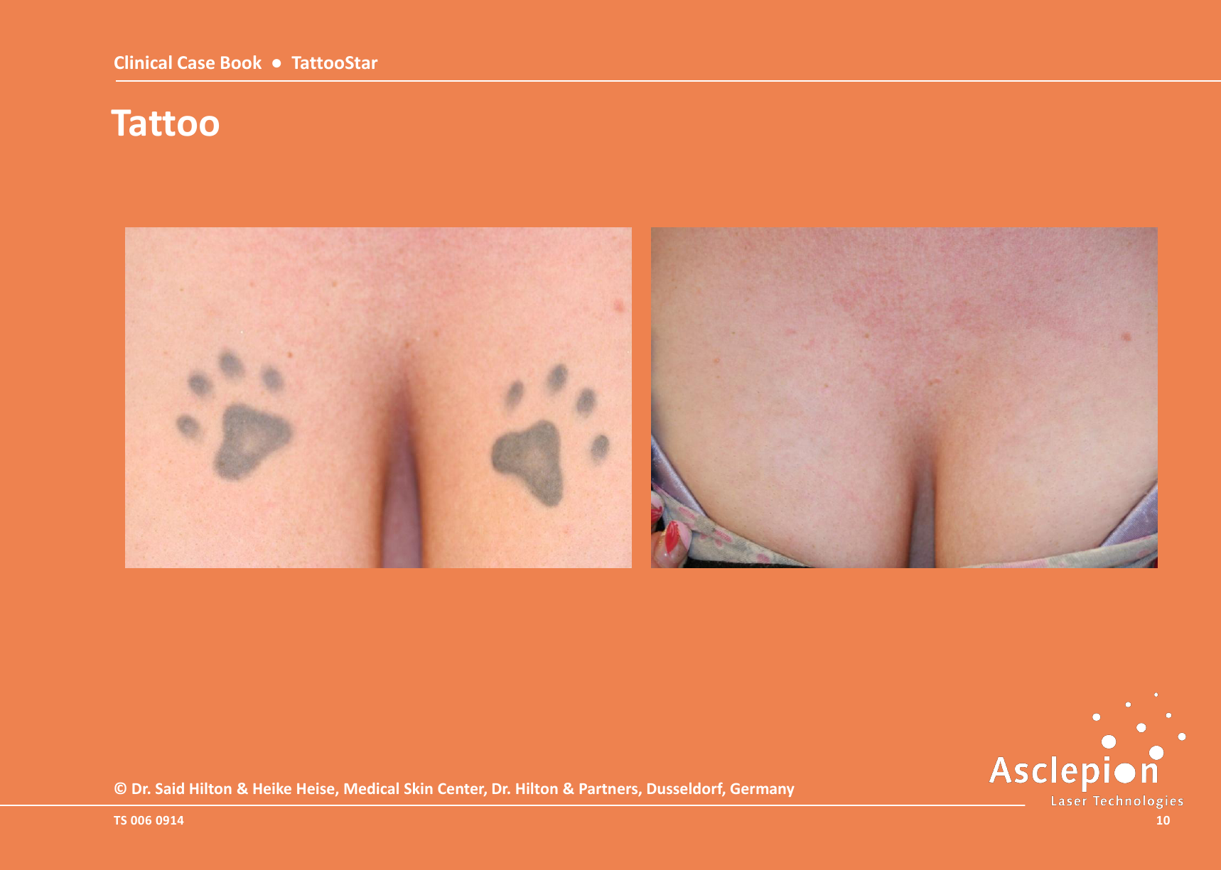 Clinical-Case-Book-2014-TattooStar_091410