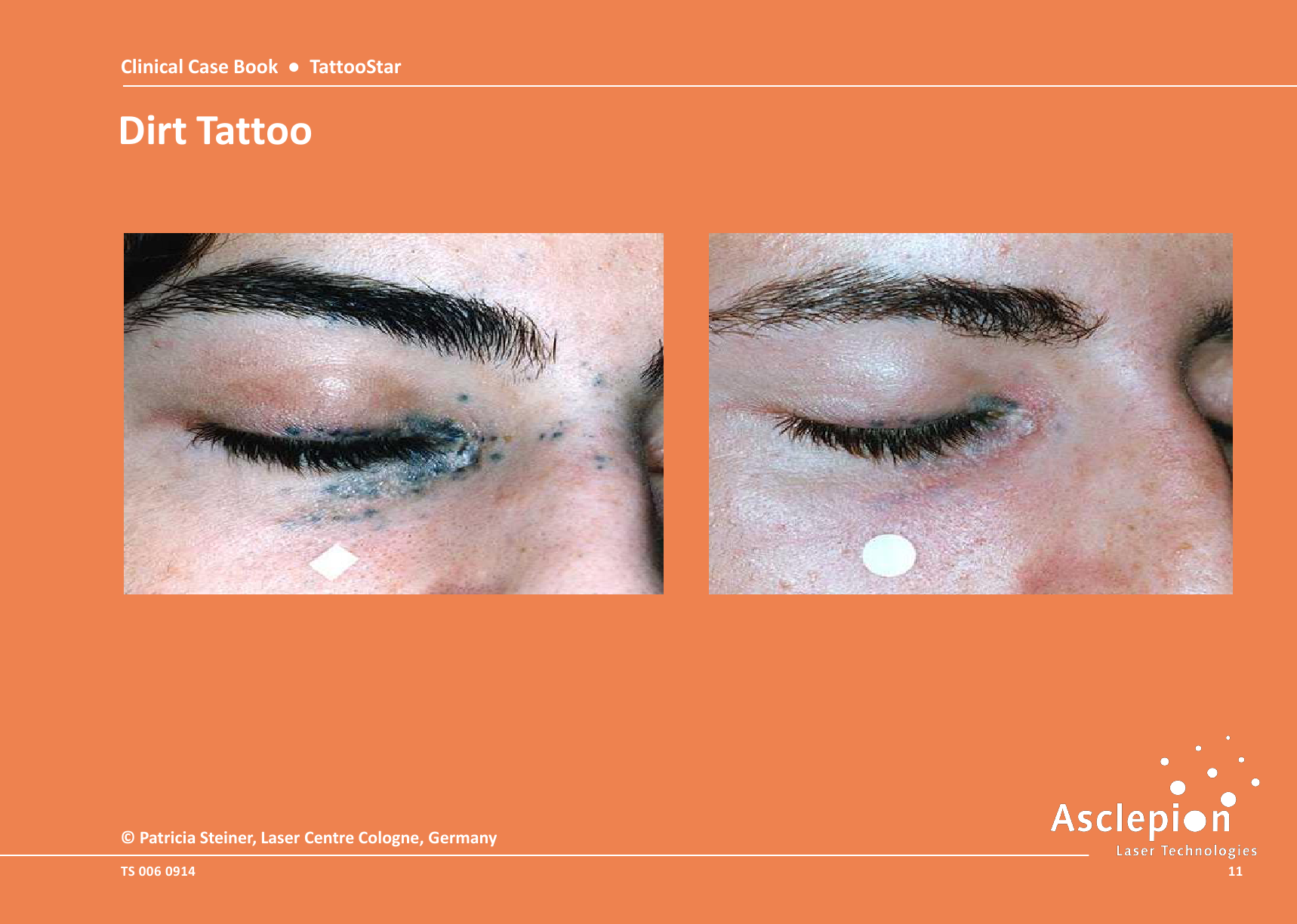 Clinical-Case-Book-2014-TattooStar_091411
