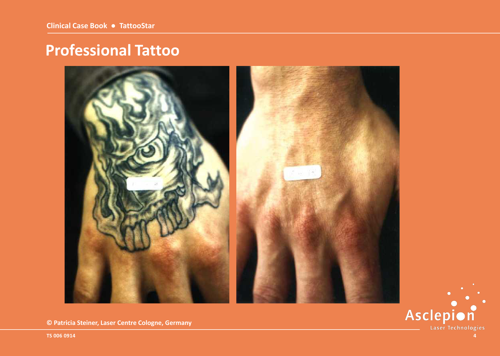 Clinical-Case-Book-2014-TattooStar_09144