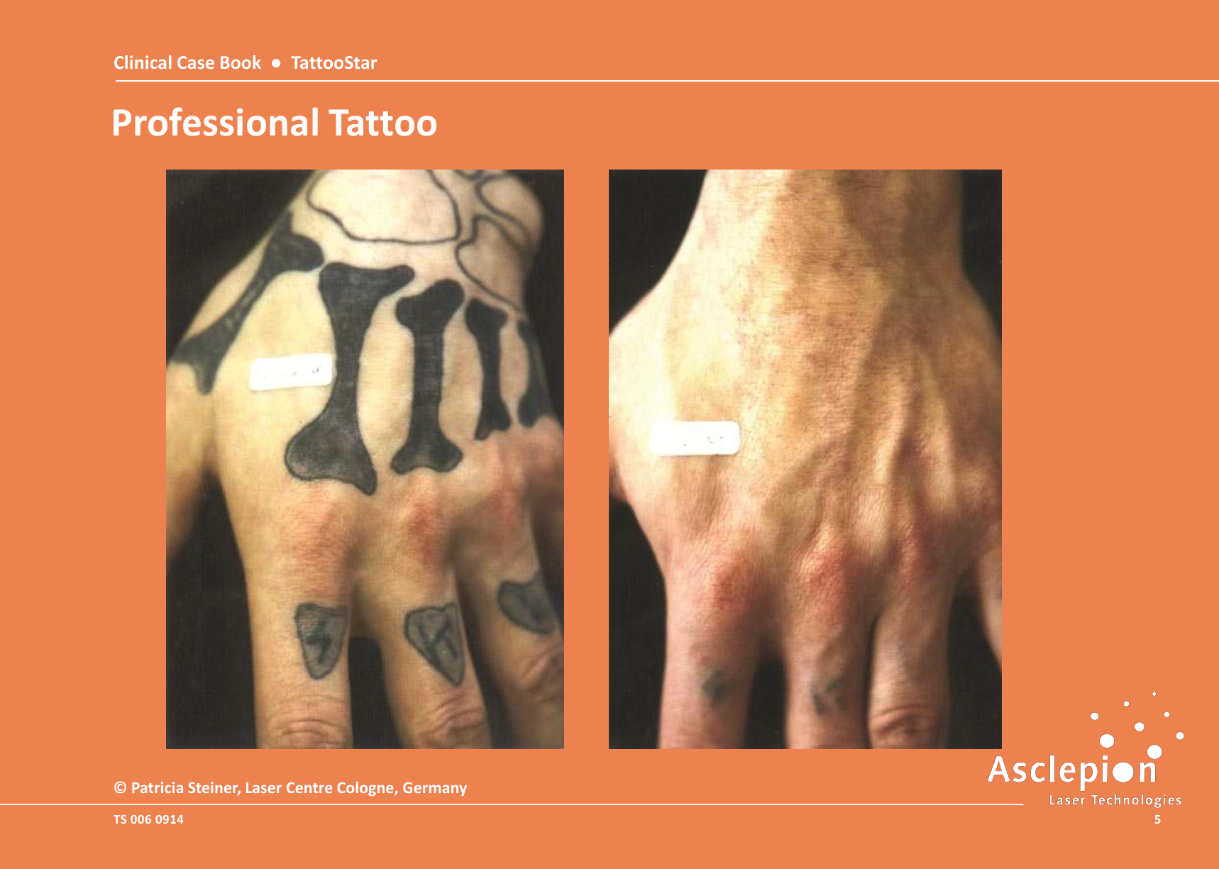 Clinical-Case-Book-2014-TattooStar_09145