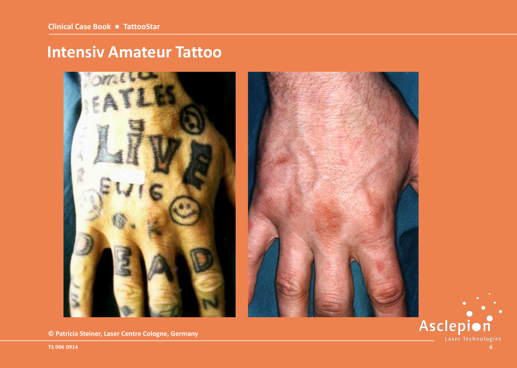 Clinical-Case-Book-2014-TattooStar_09146